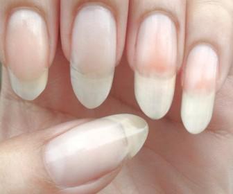 comment faire pousser les ongles