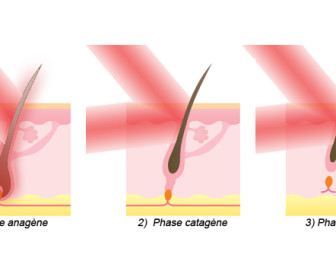comment marche épilation laser