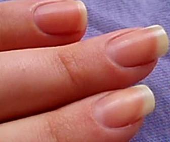 comment réparer ses ongles
